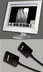 Digital Radiovisiography