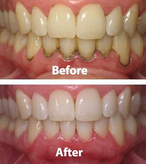 Treatment of Gums – Scaling
