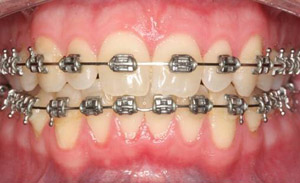 Braces (Orthodontic Treatment)