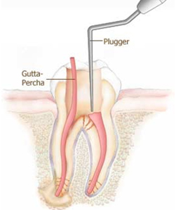 Route to reach the pulp of the tooth