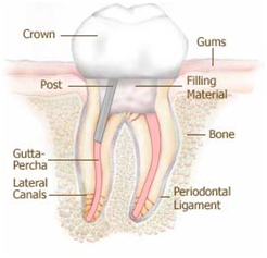 The Crowning/capping of the root canal treated tooth