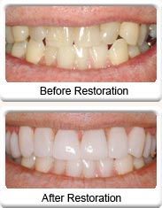 Fillings (Restoration)